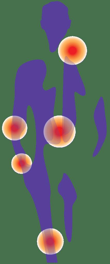 Grafik zeigt Schmerzpunkte am menschlichen Körper